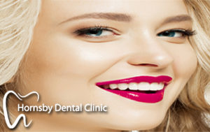 We have the best offer for dental veneers in Hornsby.