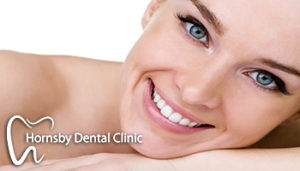 We have the best Invisalign offer in Hornsby.
