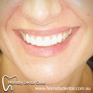 We are the experts of Invisalign here in Hornsby.