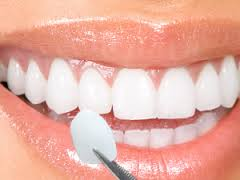 We are the best dentistry for teeth veneers in Hornsby.