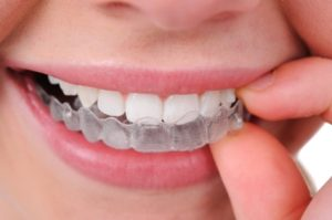 We are the best dentistry when it comes to Invisalign.