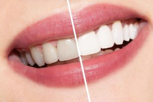 We are the best dentistry for teeth whitening in Hornsby.