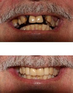 The best dentistry for dental implants in North Sydney.